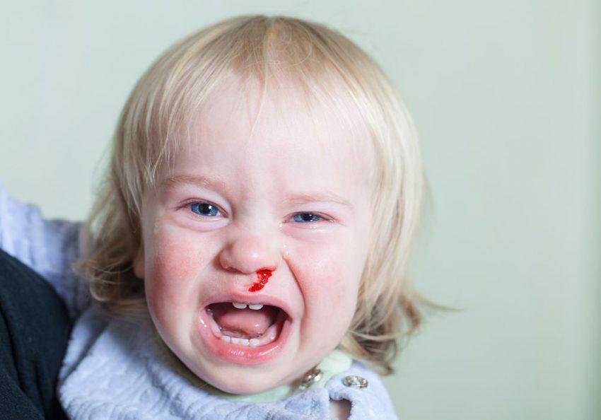 De ce curge sânge din nas la copii