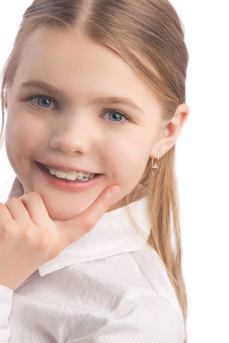 Aparatele dentare fetiță care râde