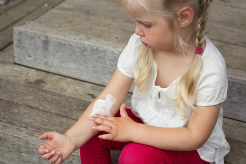 Dermatita atopică fetiță