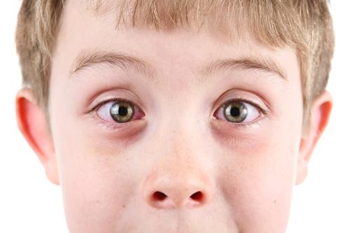 remedii naturiste pentru conjunctivită băiat
