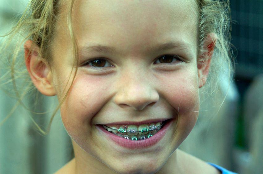 aparat-dentar-copii-totul-despre-mame