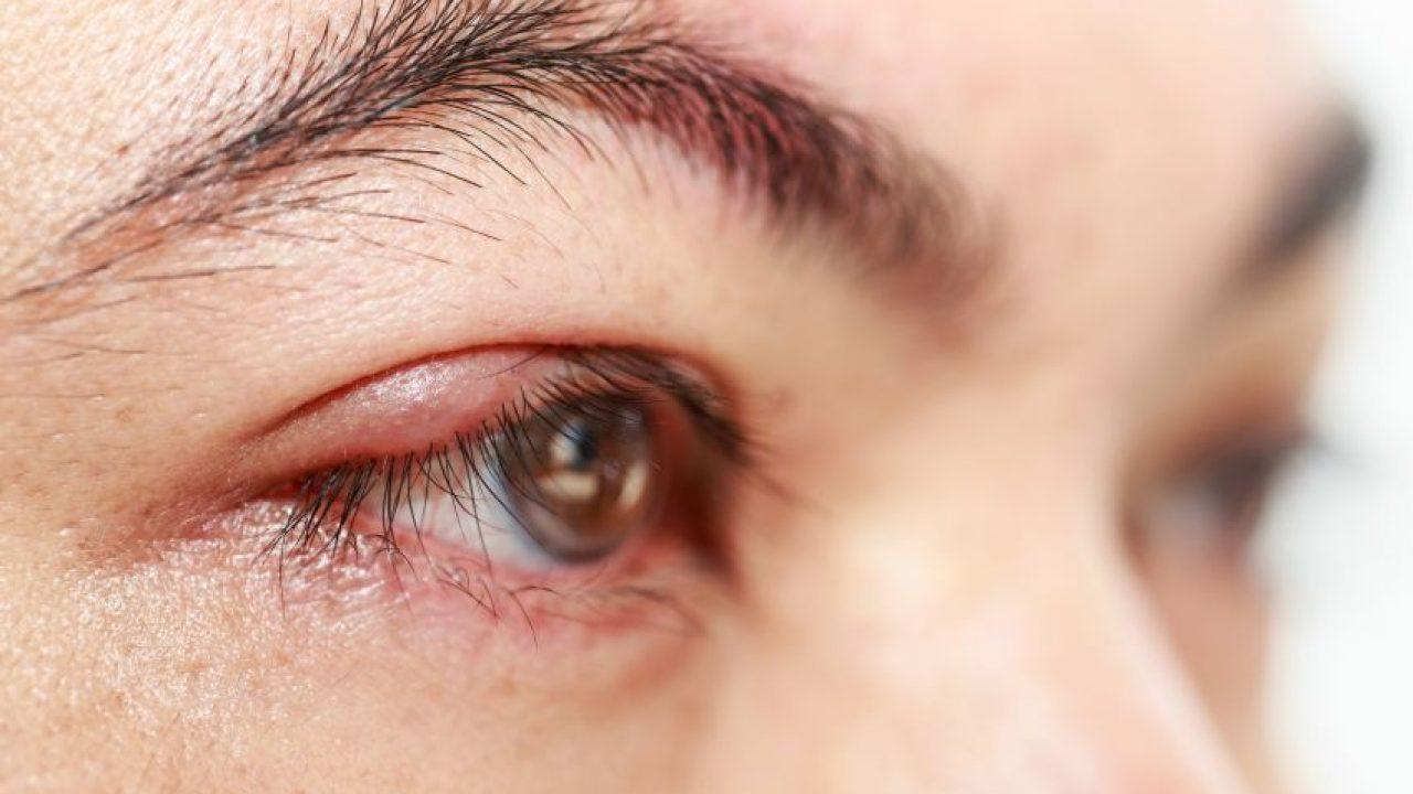 după chalazion, vederea s-a deteriorat