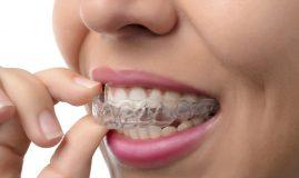 hormonii și dinții