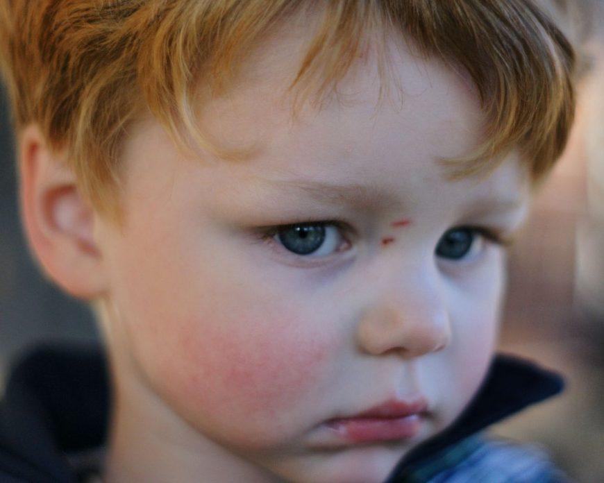 a cincea boală a copilăriei