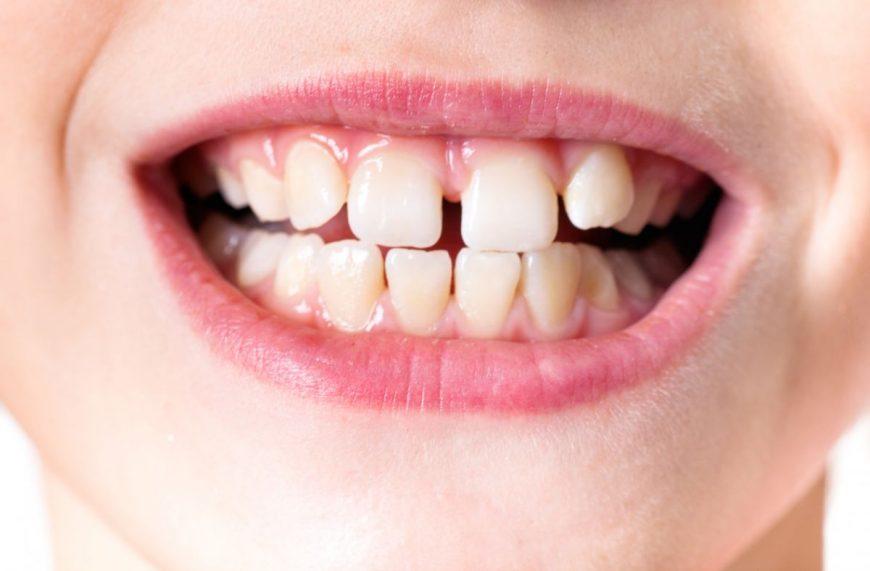 copilul scrâșnește din dinți