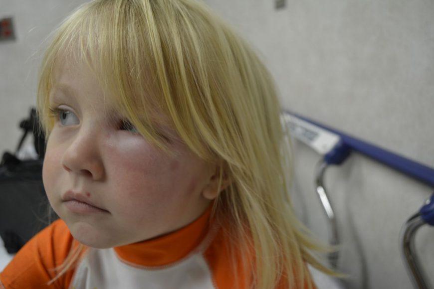 cum protejăm copiii de mușcăturile de insecte