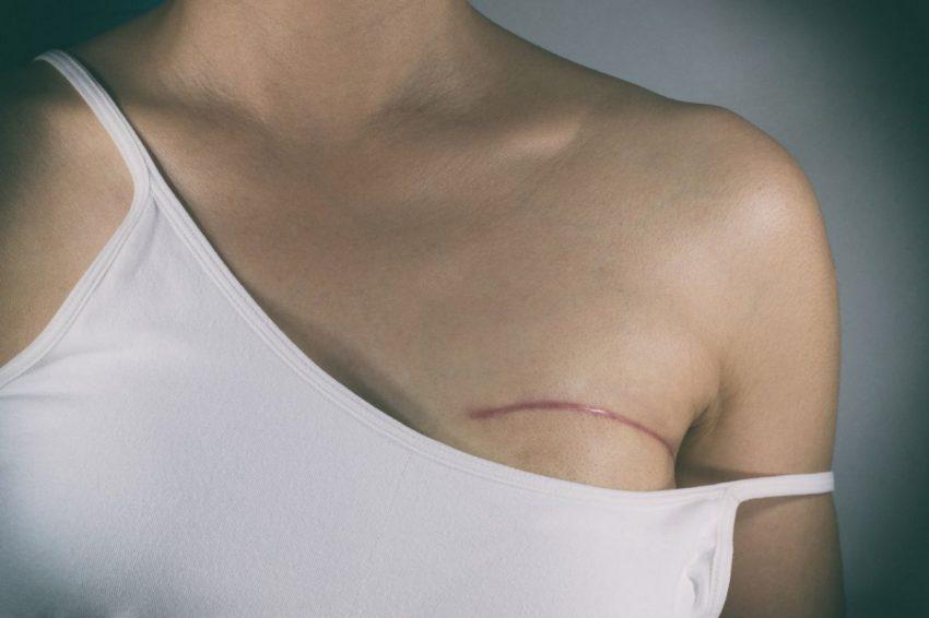semnele cancerului de sân