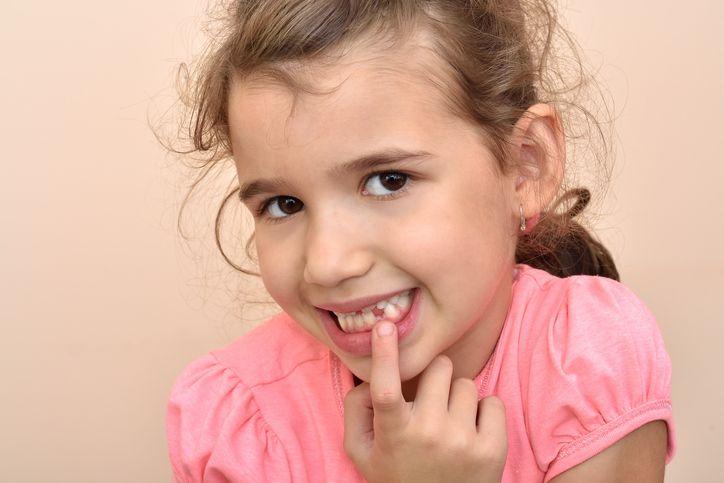 fetita care nu are dinti