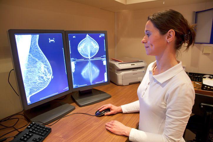 mamografia medic cancer la san