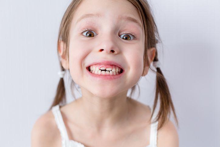 cum cad dintii copilului