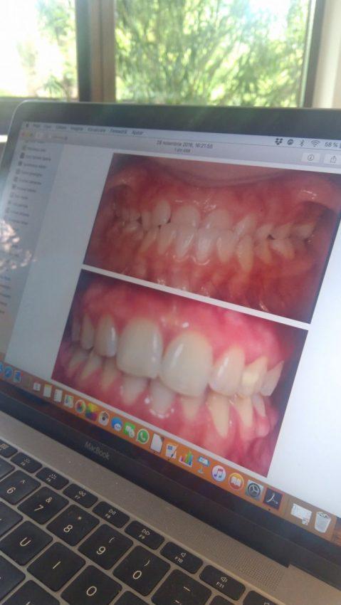 Exemple ca cazuri de copii cu probleme dentare ÎNAINTE și DUPĂ tratamentul ortodontic