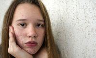 acneea la adolescenți