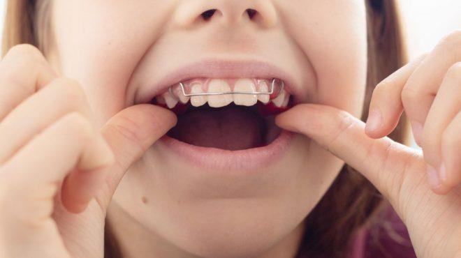 aparate pentru îndreptarea dinților