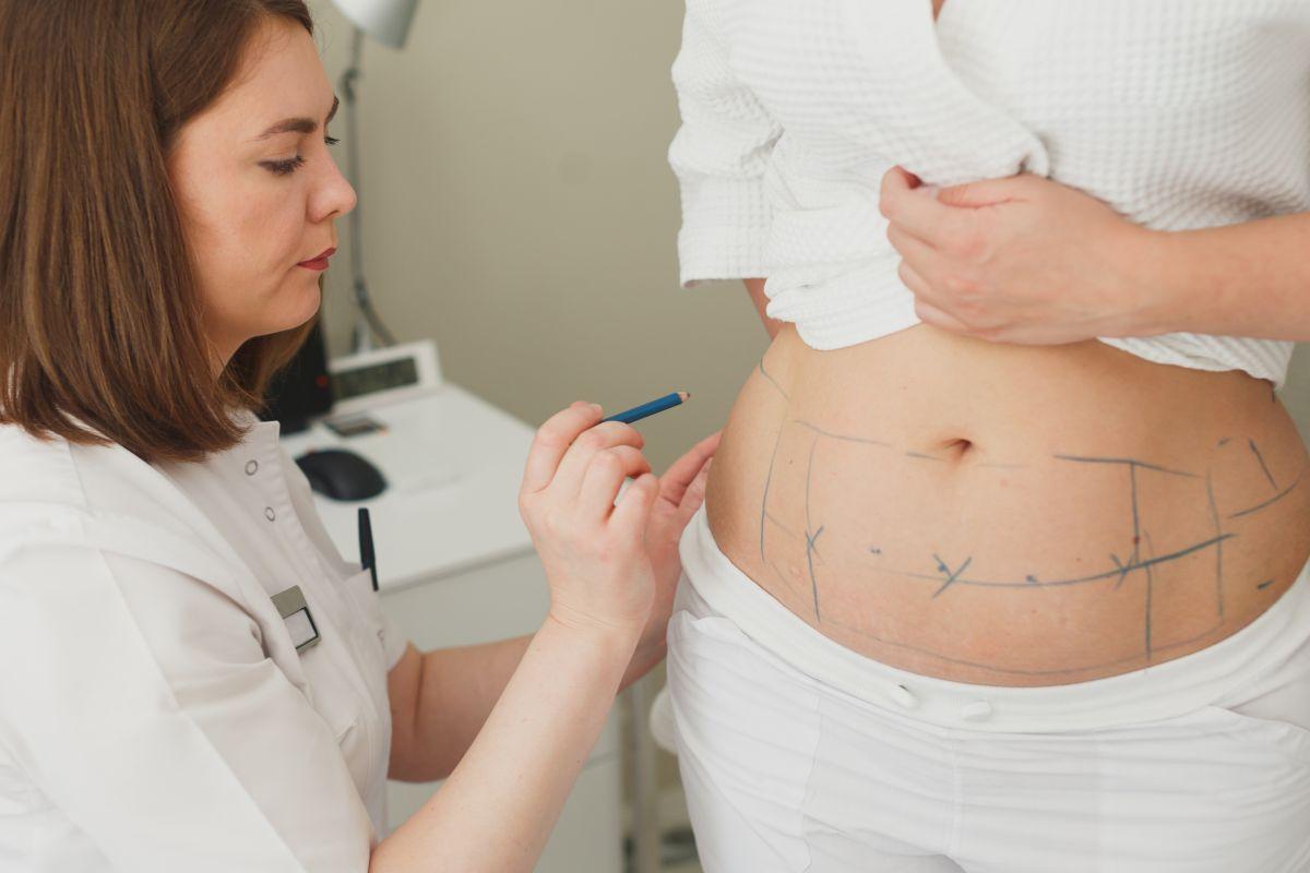 liposuție după naștere