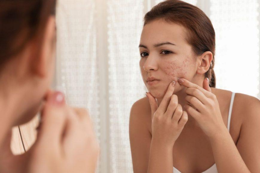 tratarea acneei la adolescente