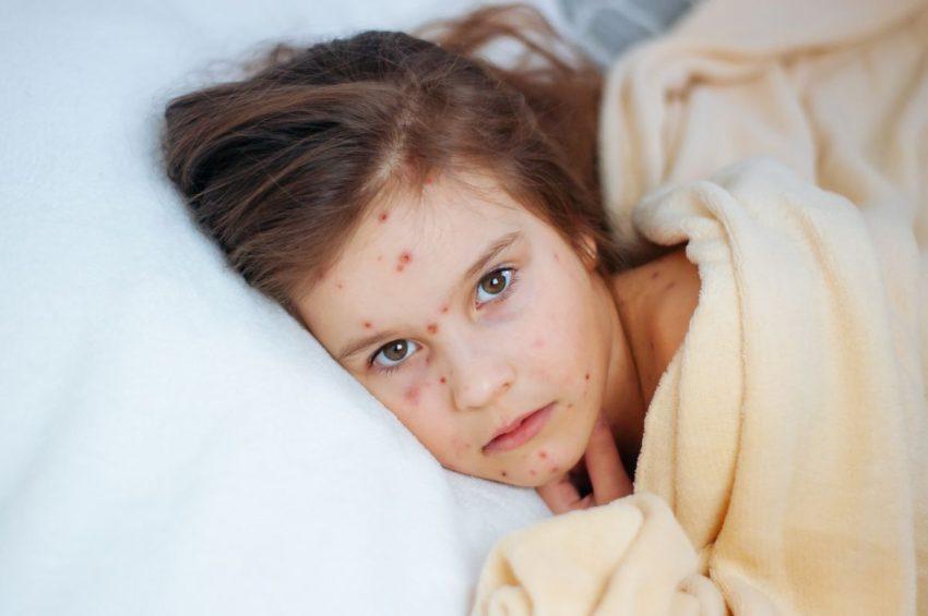 rujeolă și coronavirus la copii