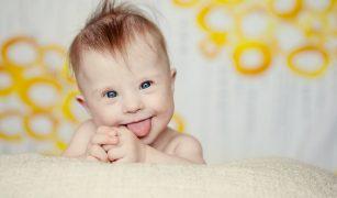 copil cu sindrom down
