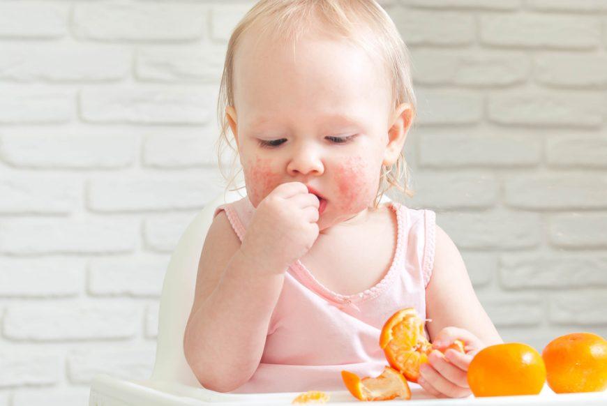 copil alergic mananca citrice