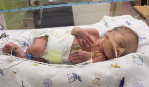 nou nascut la terapie intensivă